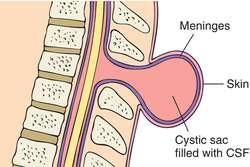 meningocele1